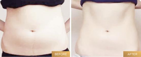 belly-39